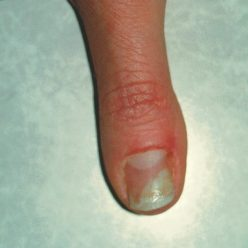 Acrylic Nail Fungus – Causes and Treatment » NailFlora