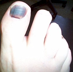 Black nail and toe nails